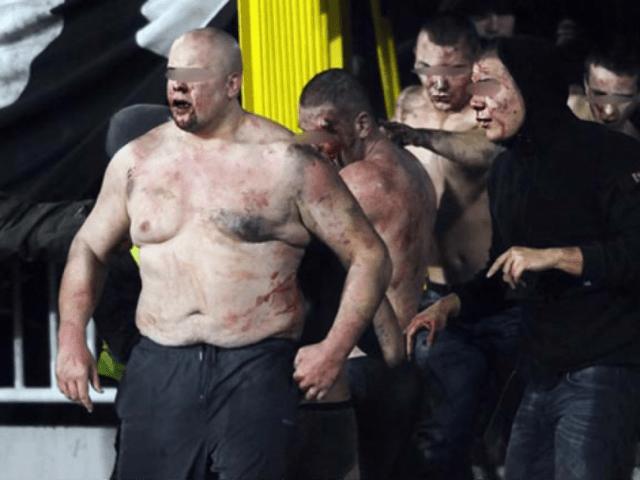 Përgjaket derbi i Serbisë/ Dhjetra të plagosur, në stadium edhe Olsi Rama me Gaz Demin /Video