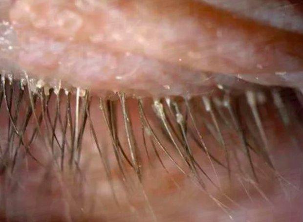 Kishte kruarje syri, mjekët shokohen nga ajo që i nxjerrin gruas /Foto