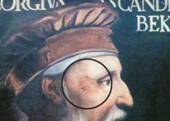 Plaga në syrin e djathtë zbulon portretin origjinal të Skënderbeut