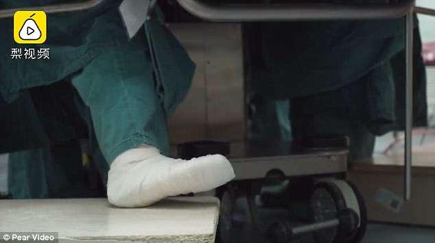 Emocionuese! Kirurgia me këmbë të thyer operon pacienten me kancer