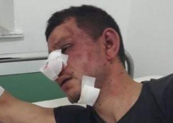 """""""Policët civilë më masakruan vëllain"""""""