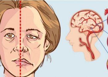 Kujdes! Këto janë shenjat që ju dërgon trupi përpara goditjes në tru