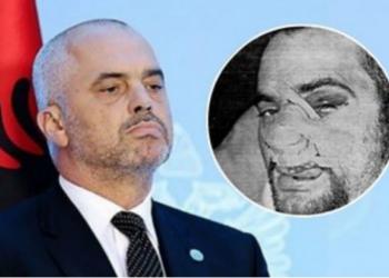E rrahën keq në vitin 97′, ja pse u largua Edi Rama drejt Parisit