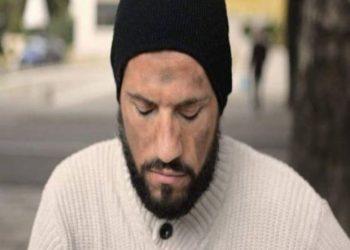 Nuk e njihni dot, këngëtari shqiptar maskohet si lypës në rrugët e Tiranës, shtanget nga reagimi i njerzve