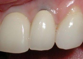 Lamtumirë impianteve dentare. Tani dhëmbët mund të ridalin sërish vetë, ja si