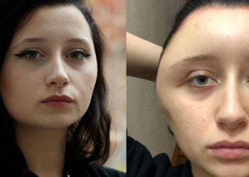 I leu flokët vetë në shtëpi, studentja përfundon me një fytyrë gjigante pas alergjisë