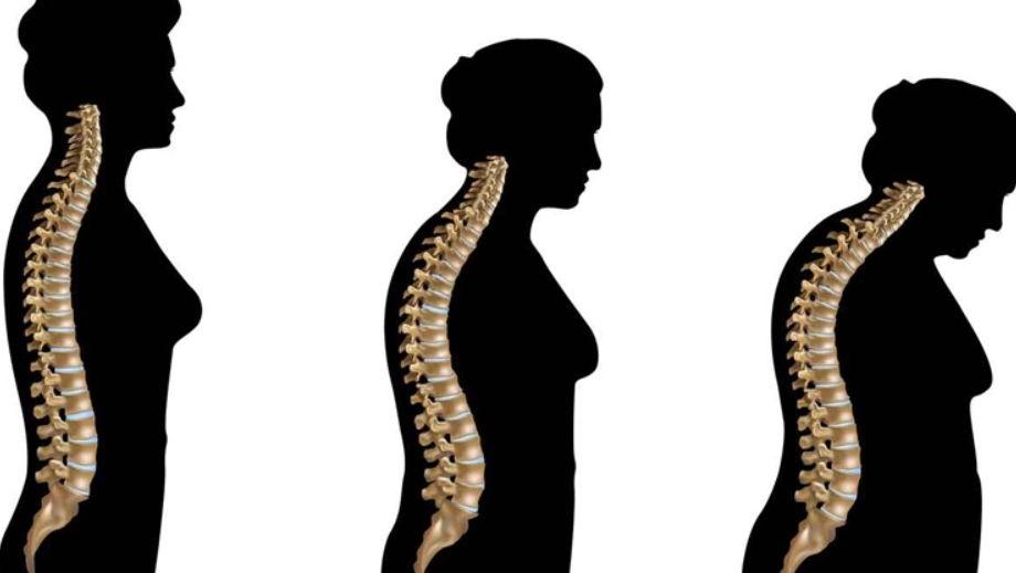 Çfarë është osteoporoza, përse gratë duhet të informohen më shumë