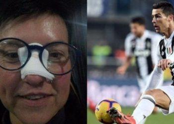 Tifozja e goditur i kërkoi darkë, ja si e surprizon Ronaldo fansen që i theu hundën (FOTO)