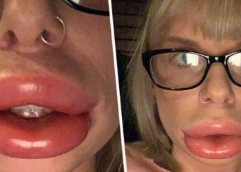 Provoi ti frynte në kushte shtëpie, vajza 29 vjeçare përfundon me buzët si salçiçe (FOTO)