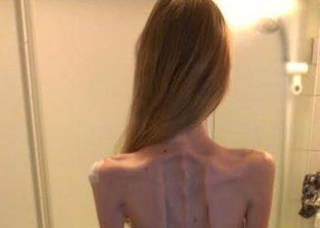 Mjekët nuk i dhanë shpresë për shkak të anoreksisë, surprizon 22-vjeçarja (FOTO)