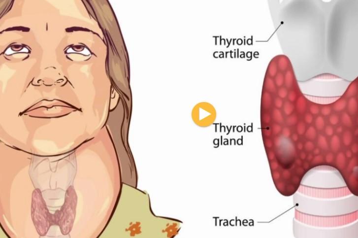 Gjysma e shqiptarëve të prekur nga tiroidet, mjekët: Kujdes nga vapa