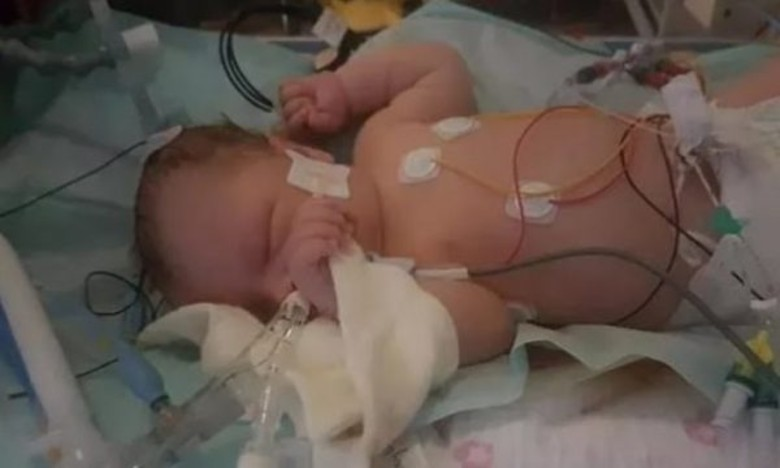 Mrekullitë ndodhin! Nuk mori frymë për 28 minuta pas lindjes, mbijeton foshnja