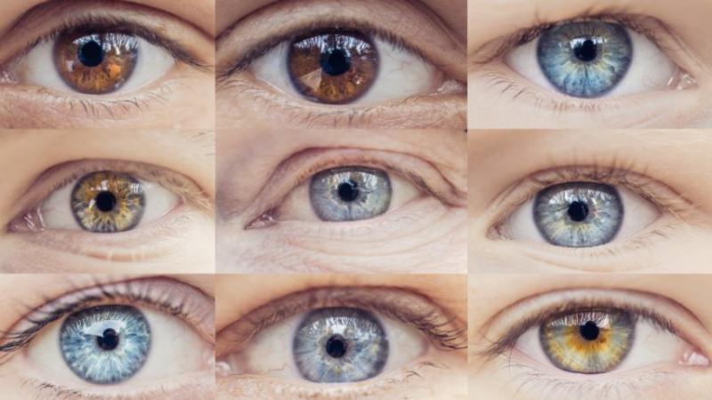 Problemet shëndetësore që tregojnë sytë