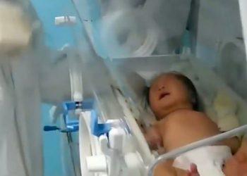 Lindi me koronavirus pasi e ëma e saj ishte infektuar, foshnja shërohet plotësisht pa marrë asnjë mjekim