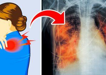 Dëmin më të madh koronavirusi e shkakton në organin e frymëmarrjes, ekspertët britanikë zbulojnë sa vjet duan të rikuperohen mushkëritë e një të infektuari