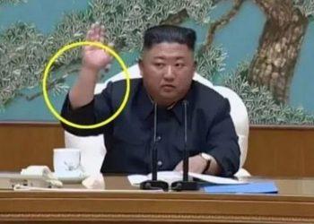 Shëndeti i liderit komunist, çfarë tregojnë shenjat në krahun e Kim Jong un (FOTO)
