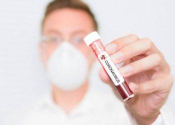 Përse u përhap kaq shumë koronavirusi?