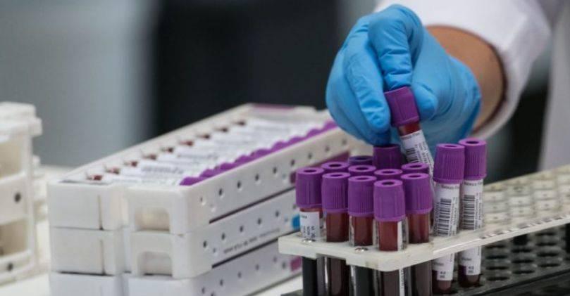 A janë disa grupe gjaku më rezistente ndaj coronavirusit?