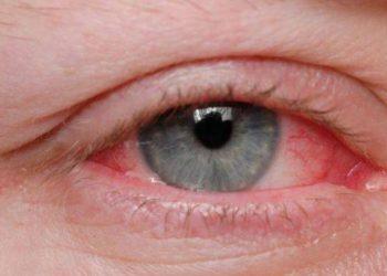 Simptomat e koronavirusit tek sytë, a mund të përhapet edhe nga lotët?