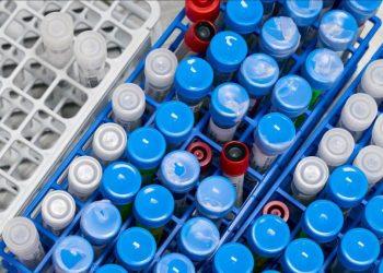 Mbi 18 milionë persona të prekur me koronavirus në botë